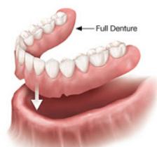 Complete removable dentures