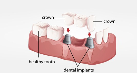 Dental Implants and Crown