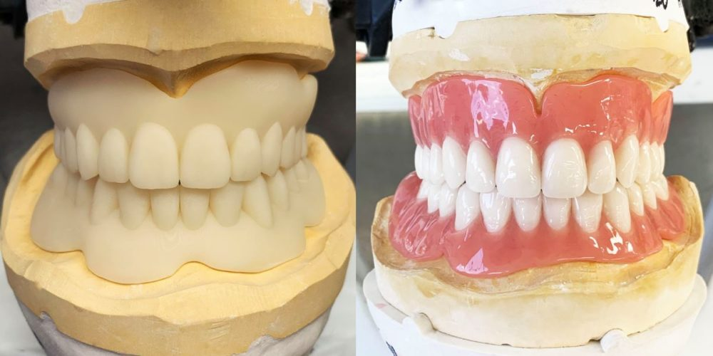Stages of moulds that create dental implants at Aria Dental