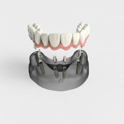 Demonstration of a full arch fixed implant is fixed into a patients jaw