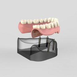 Demonstration of how an implant supported denture fits into the mouth