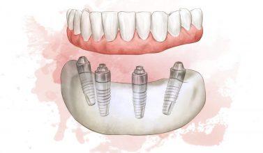 Full Arch dental implant sketch