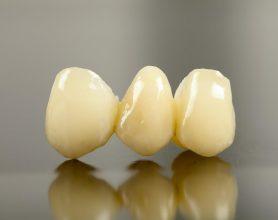 3 dental implants