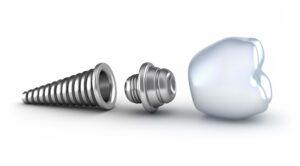 Dental Implant in Perth