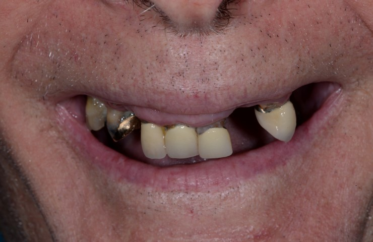 Dental Implants - Before