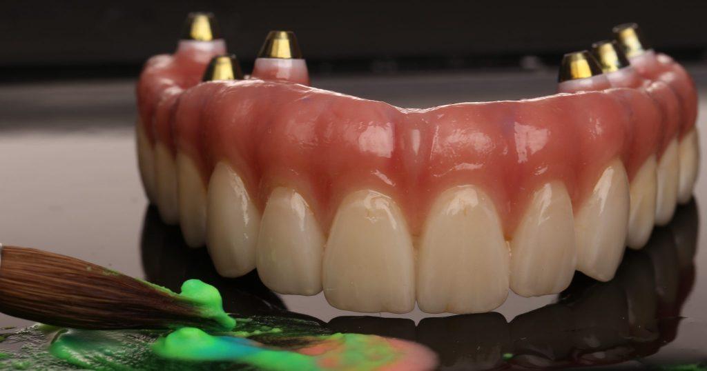 All on 6 Full Arch Dental Implant