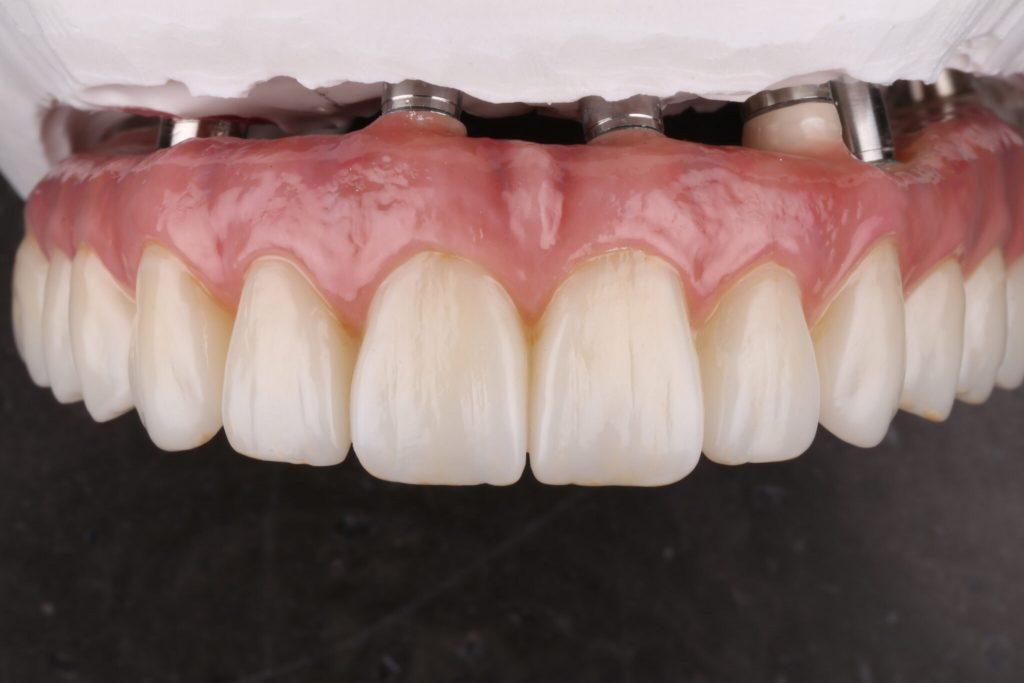 Dental implant in mould