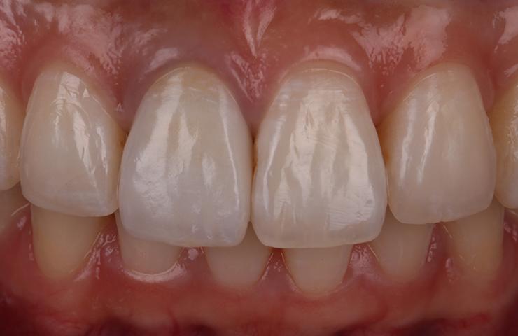 No Gaps Even Teeth After Veneers Perth