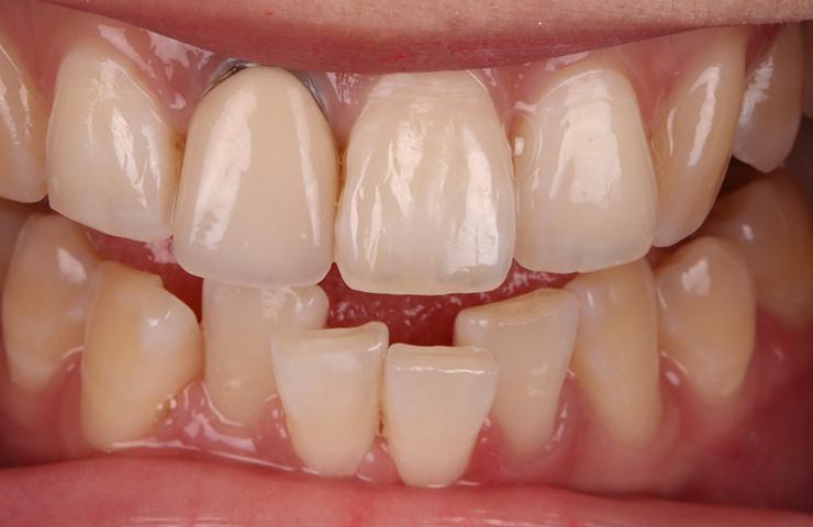Crooked Uneven Teeth Before Veneers Perth