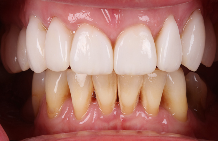 Even Coloured Straight Teeth After Veneers Perth