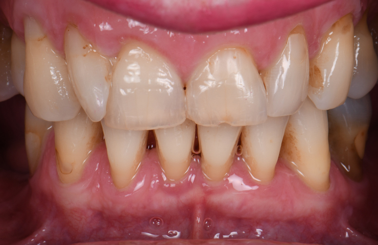 Uneven Chipped Discoloured Teeth Before Veneers Perth